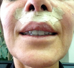 3-purity-bridge-lip-lift-home-after-surgery