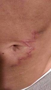 4-weeks after Purity Bridge scar removal
