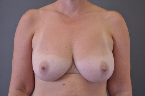 after-right-nipple-reduction-and-left-nipple-eversion-at-purity-bridge