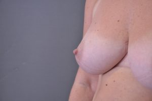 after-right-nipple-reduction-at-purity-bridge