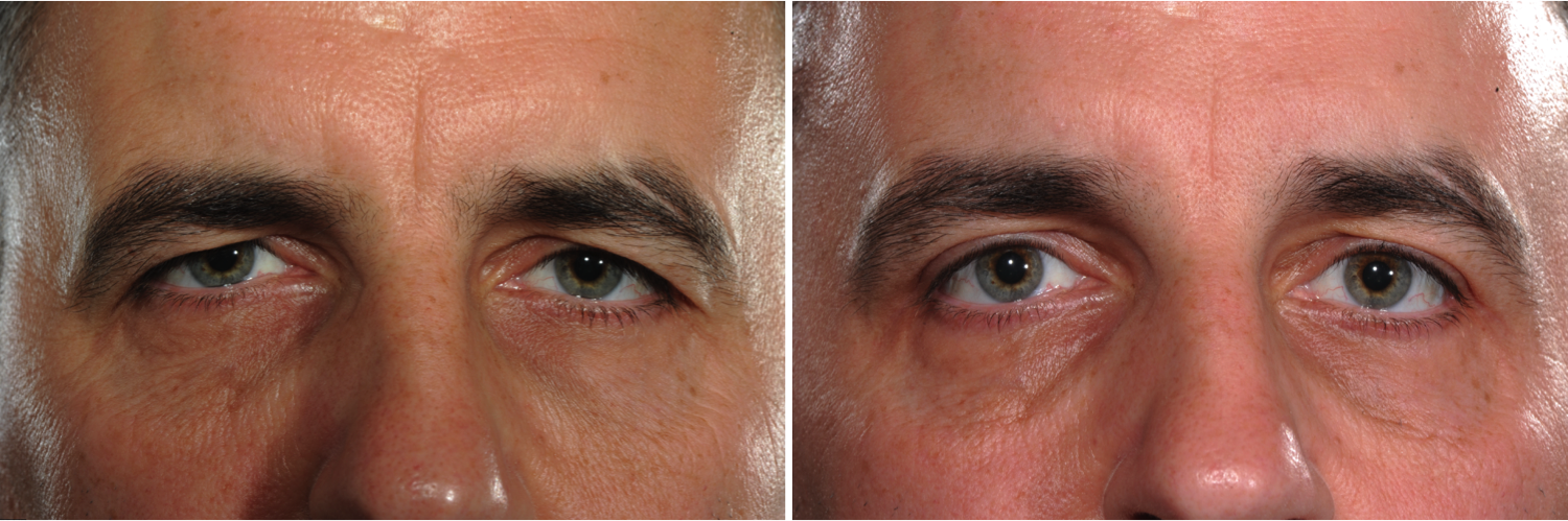 Before and after male eyebrow and eyelid lift by Marc Pacifico