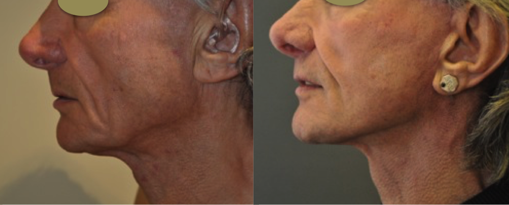 Before and after male facelift by Marc Pacifico