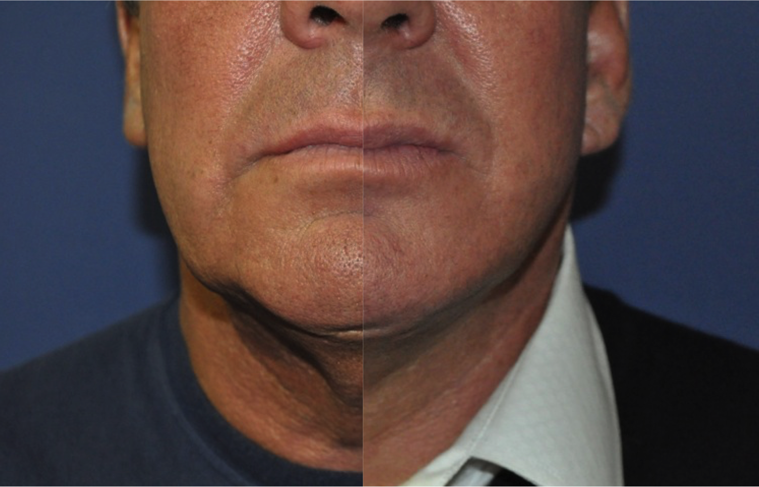 Before and after male facelift by Marc Pacifico 2