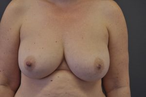 prior-to-right-nipple-reduction-and-left-nipple-eversion-at-purity-bridge