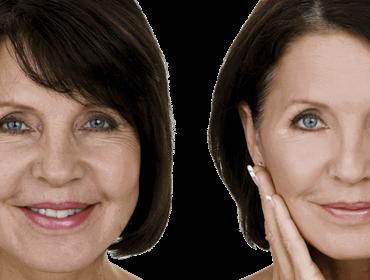 System Facial peel
