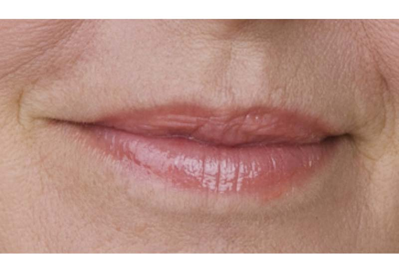Lips - thin or poorly defined