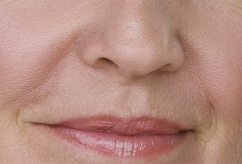 Nasolabial folds or creases