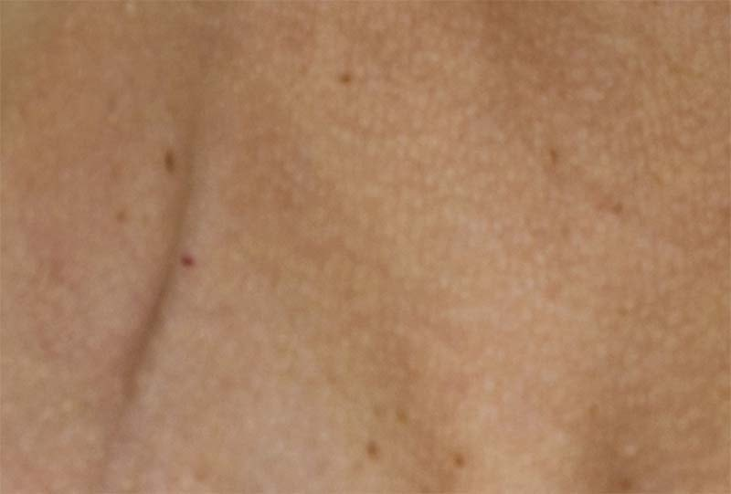 Pigmentation - spots or patches
