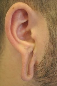 purity bridge ear flesh tunnel