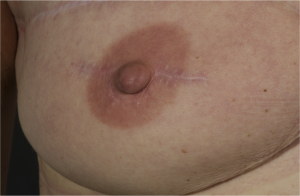 nipple-reconstruction-1