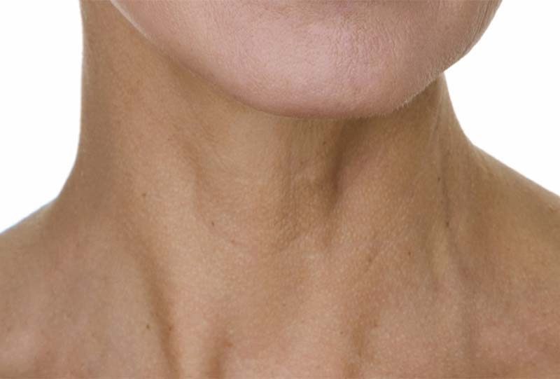 Neck ageing
