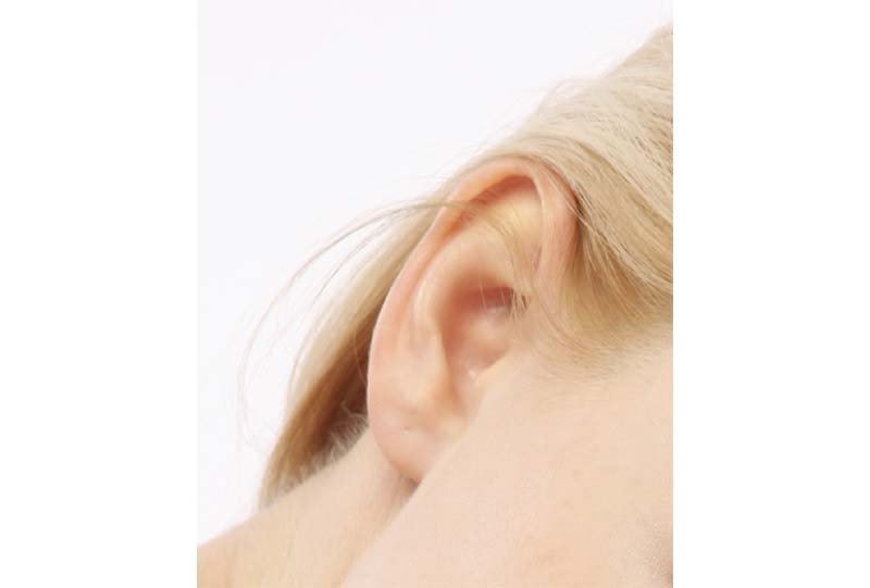 Split earlobes