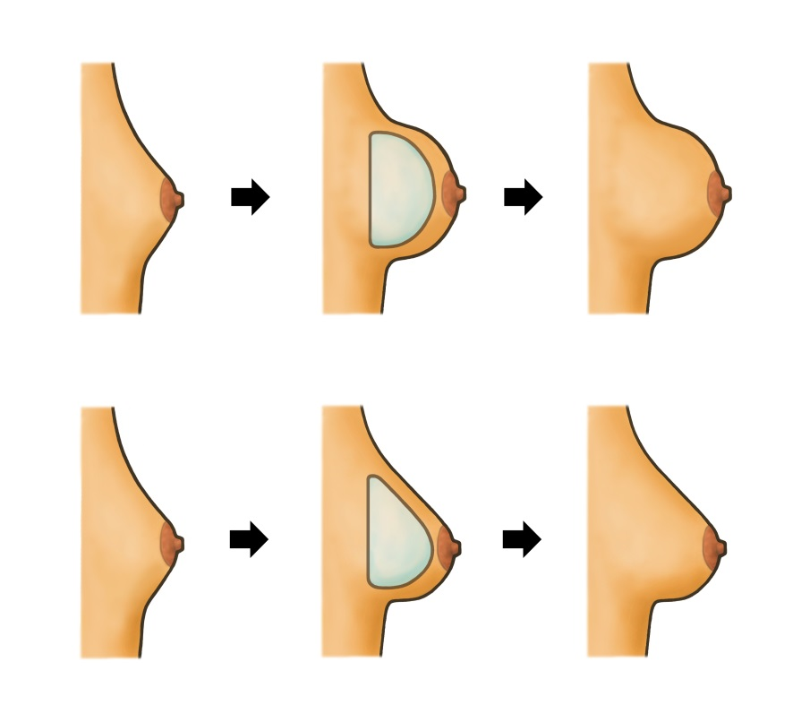 what-does-girls-breasts-look-like