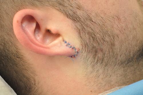 Ear After Flesh Tunnel Repair Purity Bridge